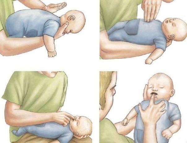 Что делать, если грудничок подавился и задыхается