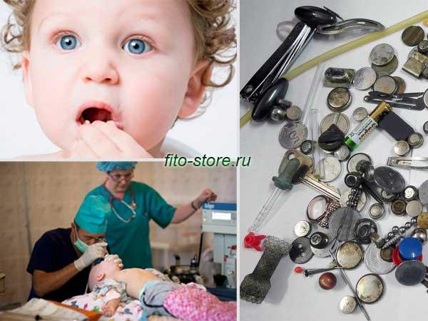 Ребенок проглотил монету: что делать и как помочь малышу?