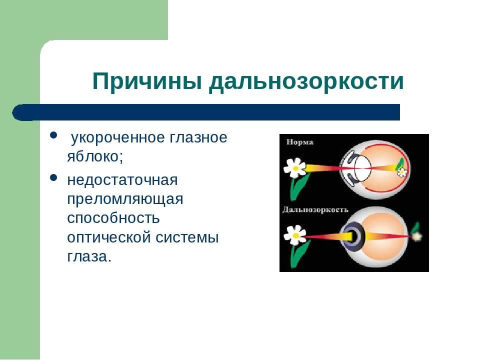 Врожденная близорукость у ребенка: каков прогноз? - энциклопедия ochkov.net
