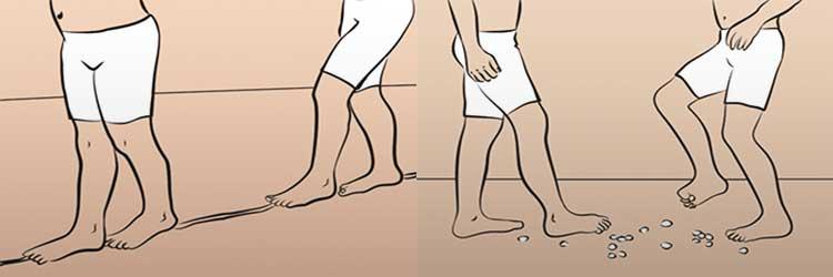 Хирургическая коррекция вальгусной деформации коленного сустава у взрослых введение