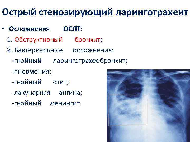 Диагностика и лечение трахеита (александров)