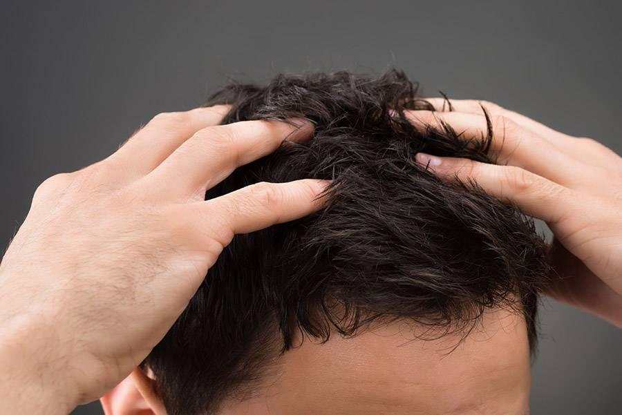 Распространенные заболевания кожи головы: дерматологические, грибковые, гнойничковые, инфекционные