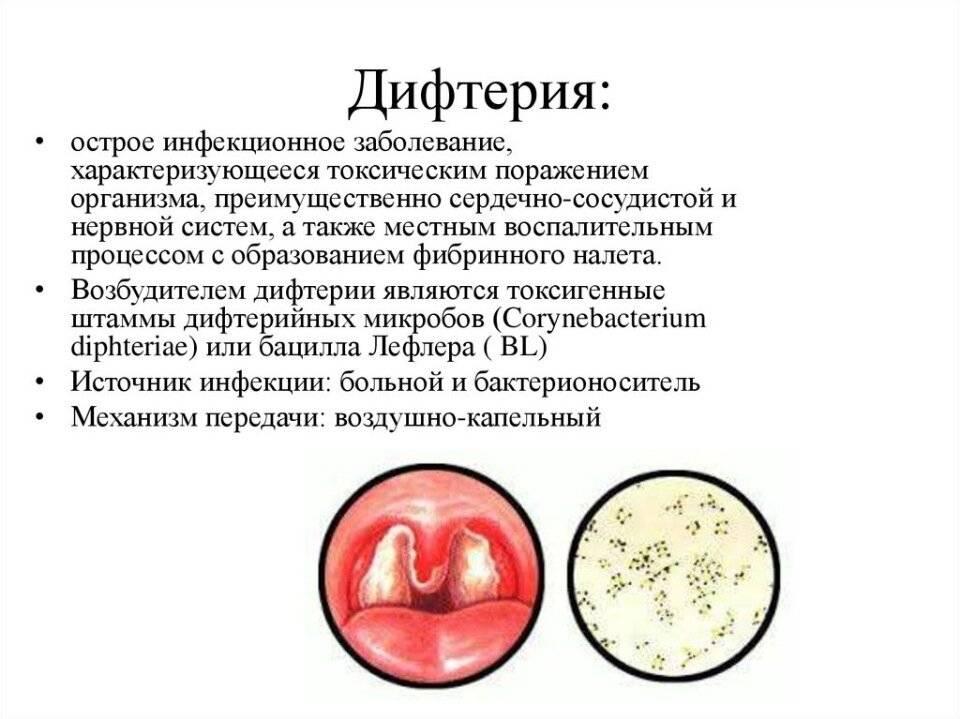 Дифтерия у детей: симптомы, лечение, профилактика