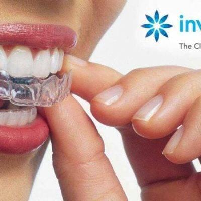 Пластинки для исправления прикуса и выравнивания зубов, исправление зубов пластинками в клинике цэлт.