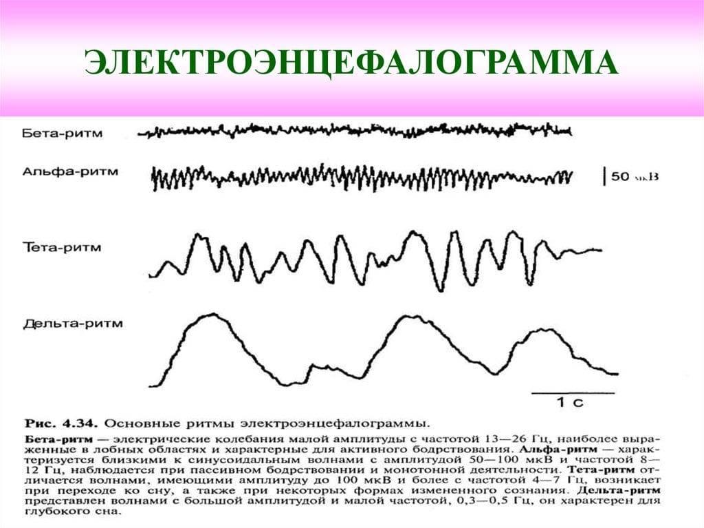 Консультация эпилептолога в москве   цены на консультацию нейропсихологических заболеваний и отклонений у детей в epihelp