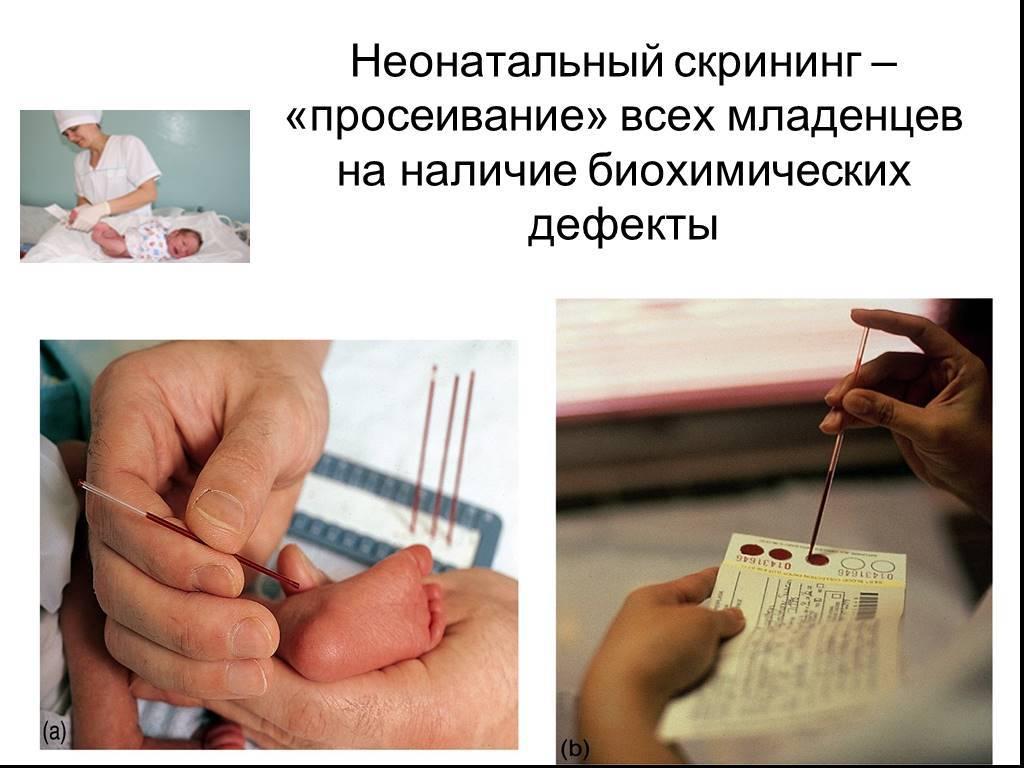 Неонатальный скрининг новорожденных в роддоме на наследственные заболевания (анализ крови из пятки)