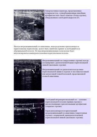 Гипоксия плода. симптомы, признаки, последствия - капсула жизни