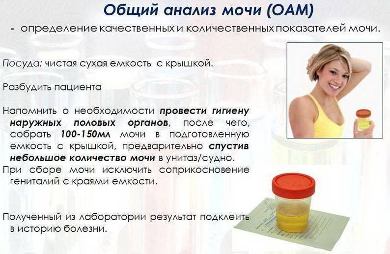 Анализы при цистите у женщин, мужчин и детей | компетентно о здоровье на ilive