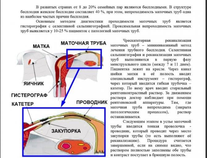 Можно ли забеременеть при непроходимости маточных труб