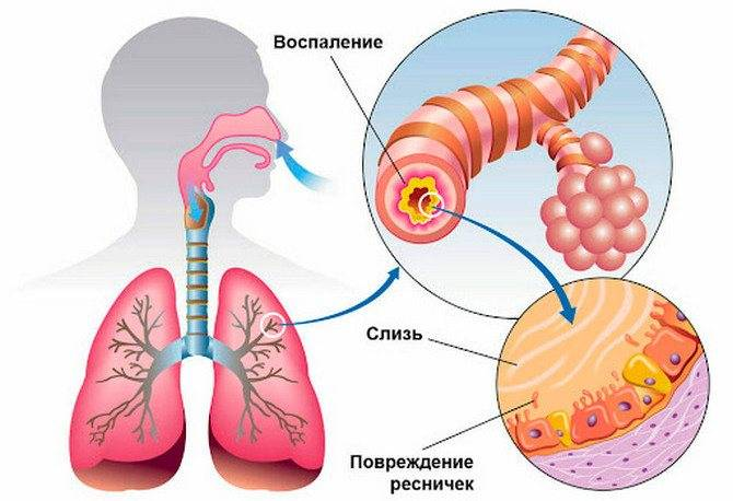 Обструктивный бронхит у детей - симптомы болезни, профилактика и лечение обструктивного бронхита у детей, причины заболевания и его диагностика на eurolab