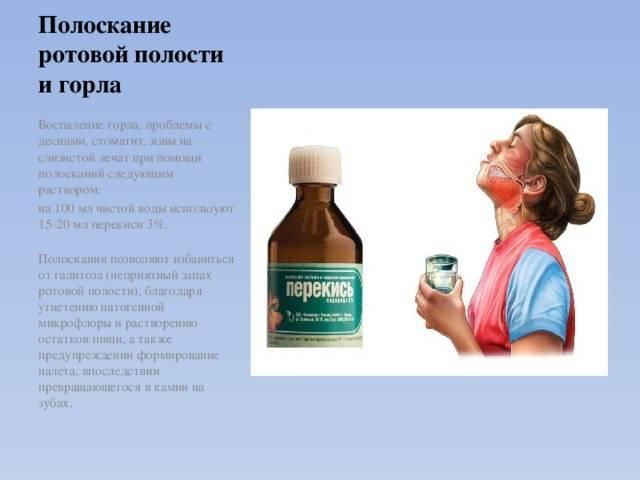 Йодинол при ангине взрослому и ребенку: инструкция по применению | компетентно о здоровье на ilive