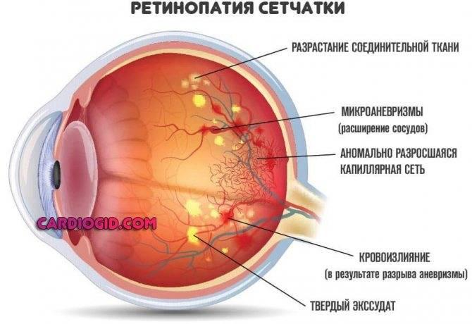 Первые признаки диабетической ретинопатии - энциклопедия ochkov.net