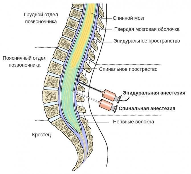 Спинальная анестезия: показания, способ проведения, побочные эффекты