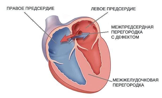 Дефект межпредсердной перегородки (дмпп) - krascor.ru