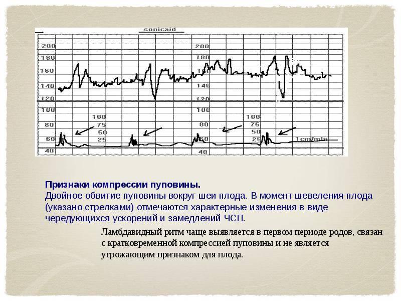 Схватки на ктг: признаки ложных и естественных сокращений