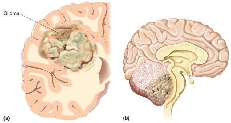 Современные методы лечения глиомы головного мозга