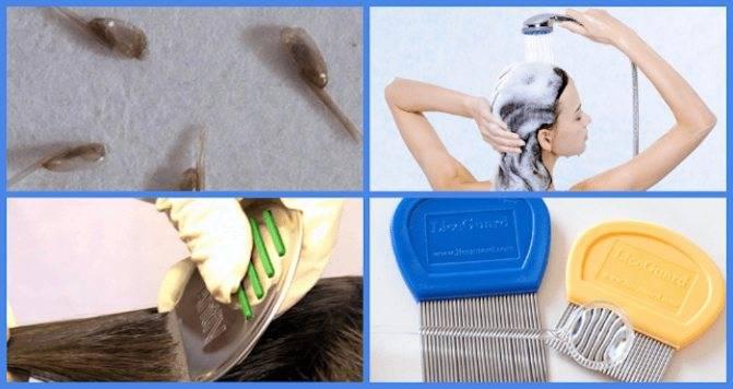 Корочки на голове у грудничка — как убрать