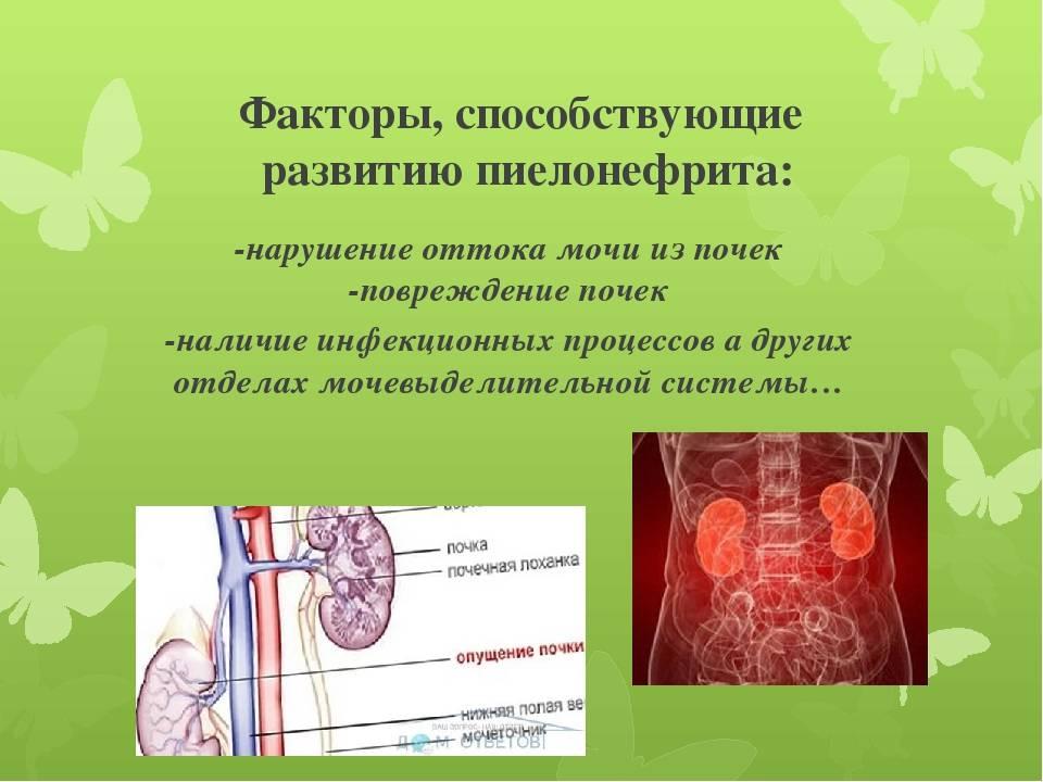 Острый обструктивный пиелонефрит. причины, симптоматика, диагностика и лечение острого обструктивного пиелонефрита!
