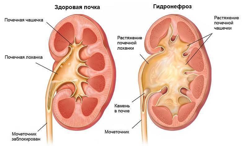 Гидронефроз – увеличение чашечно-лоханочного комплекса, которое происходит на фоне затрудненного оттока мочи