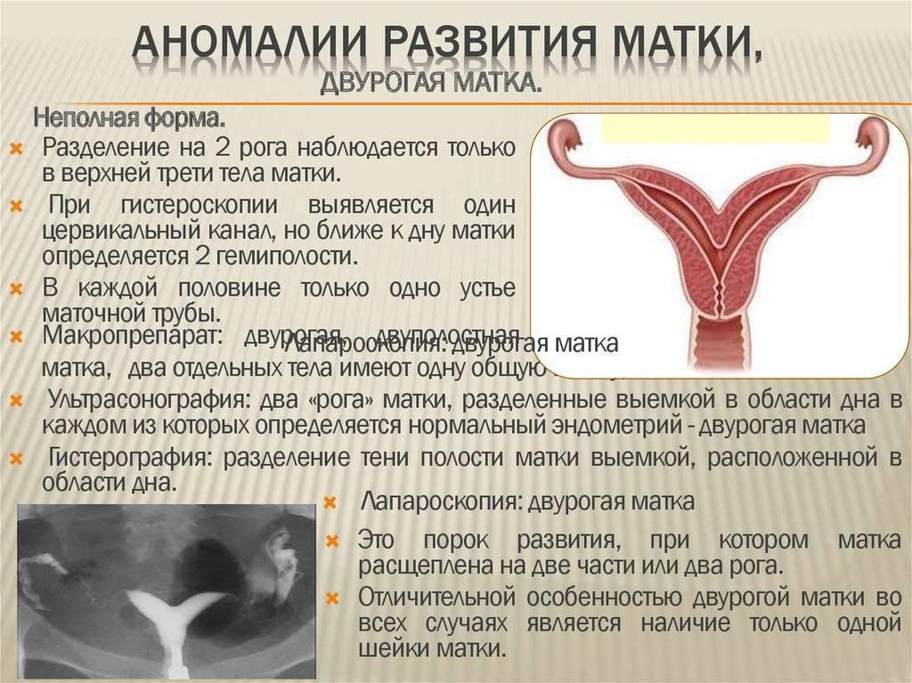 Седловидная матка – возможно ли зачатие и беременность?