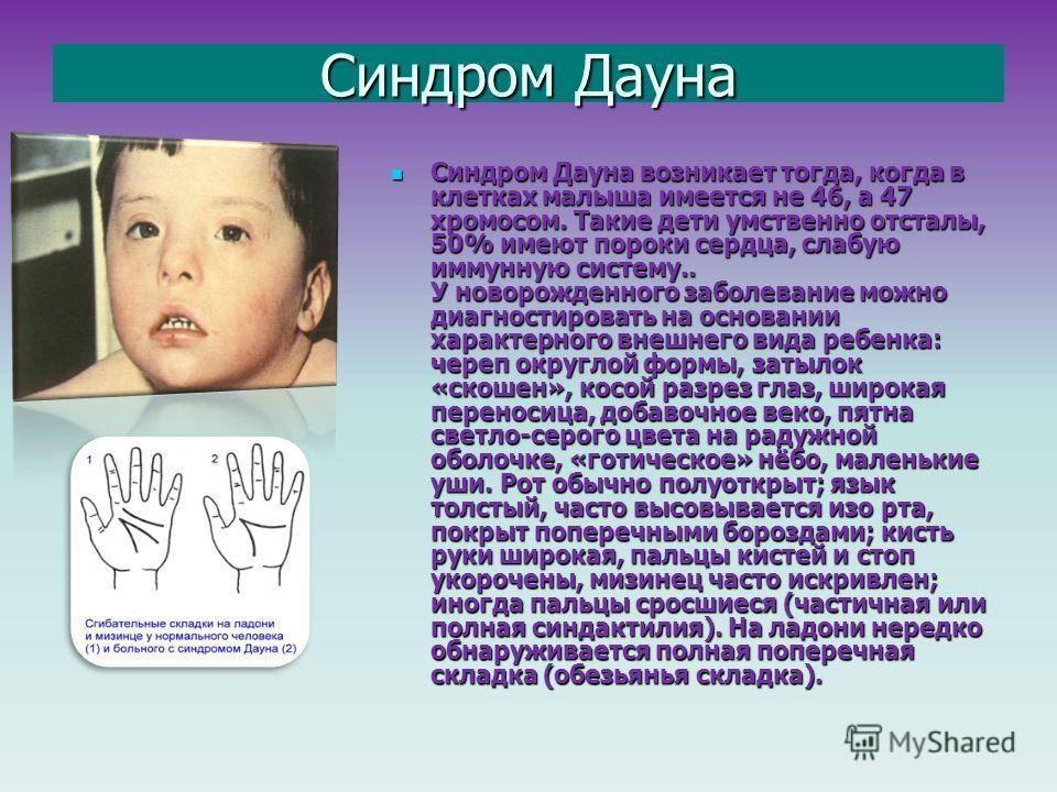 Развитие ребенка с синдромом дауна: от 0 до 19 месяцев