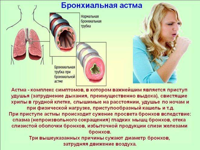 Аллергический кашель. симптомы аллергического кашля у детей. лечение аллергического кашля
