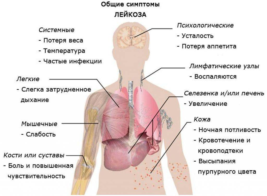 Острый лейкоз: симптомы, диагностика, профилактика — онлайн-диагностика