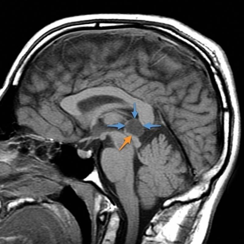 Лечение кисты головного мозга | компетентно о здоровье на ilive