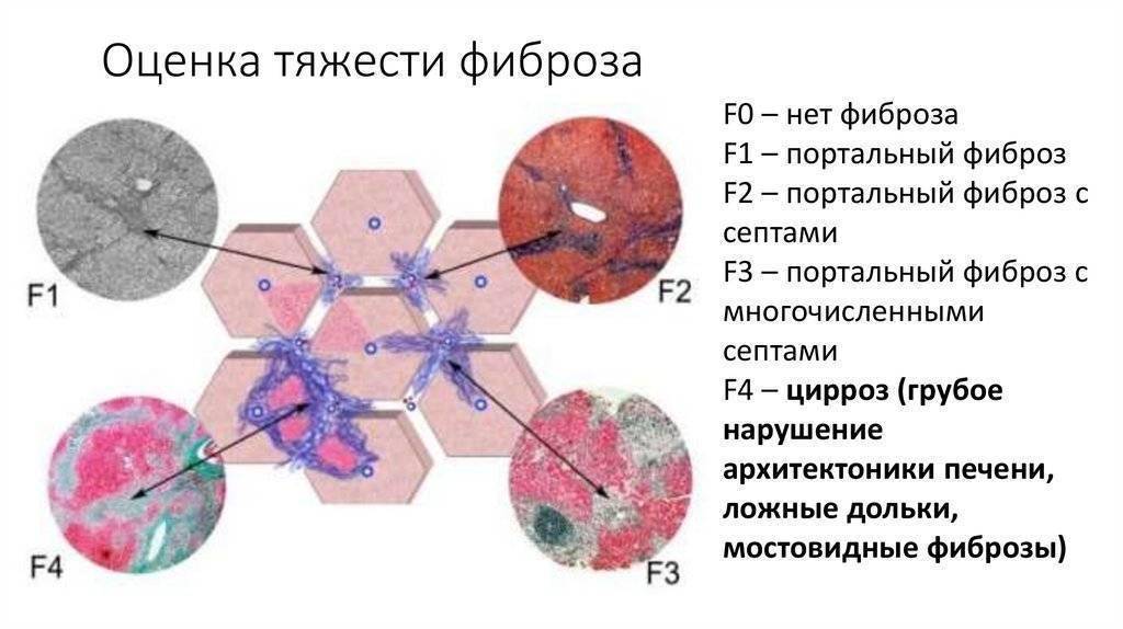 Особенности фиброза печени у детей и методы диагностики