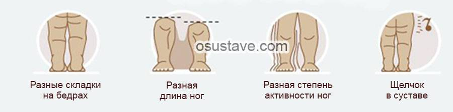 Дисплазия тбс у собак