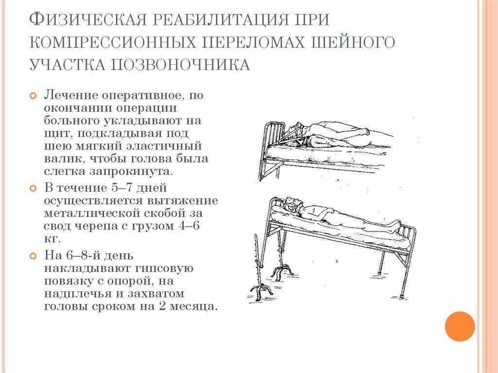 Перелом позвоночника: симптомы, последствия, лечение   медицинский дом odrex