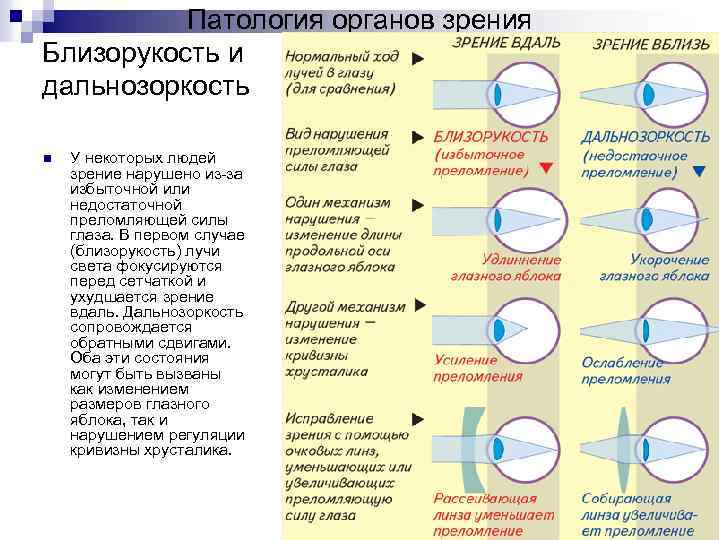 Спазм аккомодации у детей - что это такое и какое лечение необходимо для глаз?