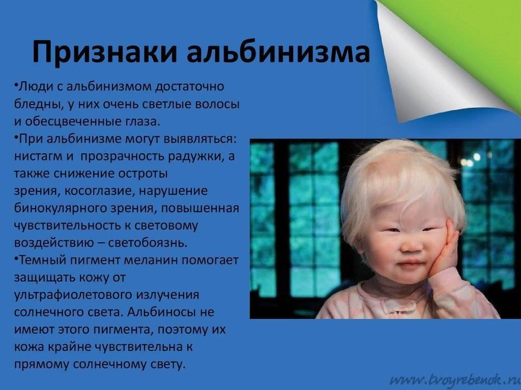 Особенные дети или ребенок - белая ворона » для детей и родителей