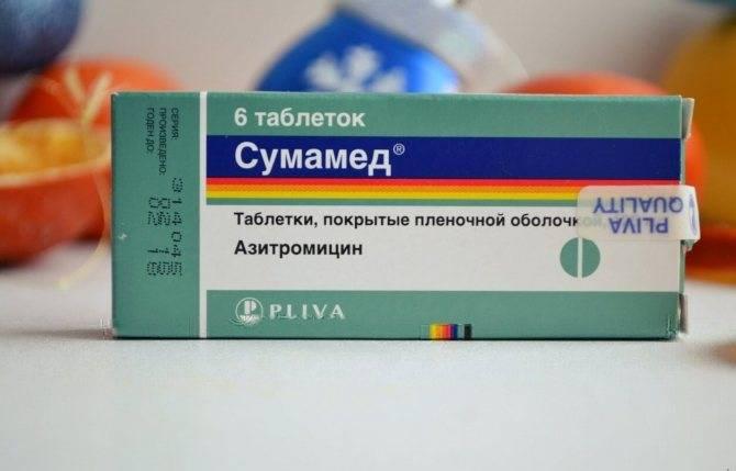 Тонзиллит: виды, симптомы, лечение