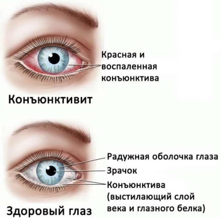 Покраснение глаз при конъюнктивите - энциклопедия ochkov.net