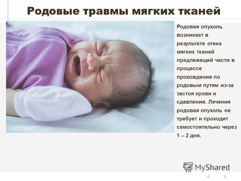 Вывих ключицы у новорожденного. лечение