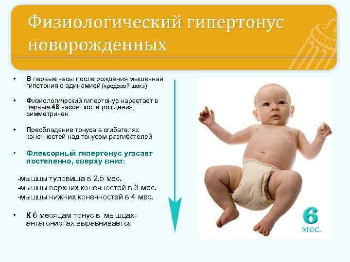 Гипертонус мышц у ребенка - beautyvertebro.com