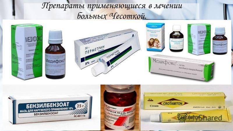 Как лечить радикулит в домашних условиях: народные и медикаментозные средства
