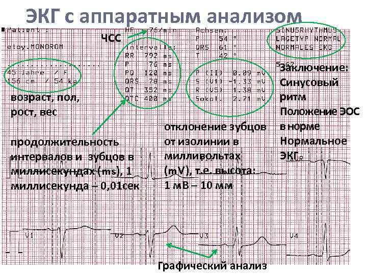 Электрокардиография (экг) сердца: нарушения ритма, блокады, отведения, теле-экг - сибирский медицинский портал