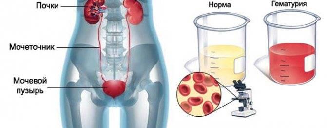 Гематурия. причины появления крови в моче, диагностика и лечение