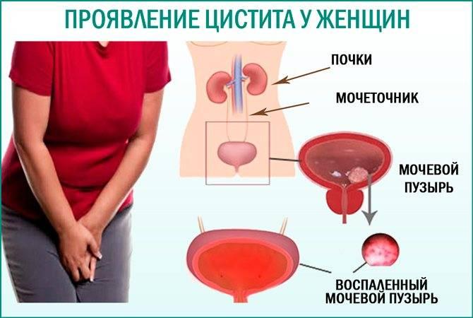 Цистит у детей: причины, симптомы, лечение
