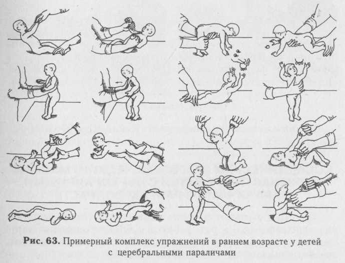 Какой должна быть гимнастика для развития годовалого ребенка?