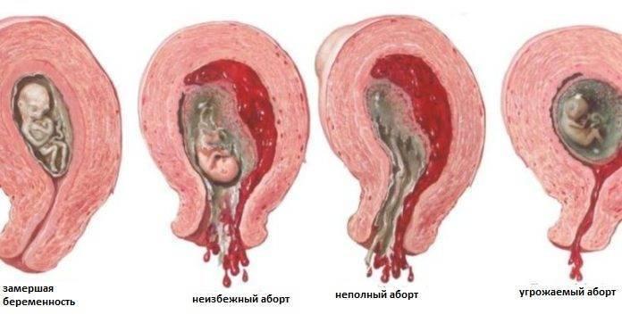 Признаки беременности после переноса эмбрионов