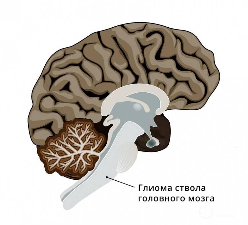 Виды опухолей мозга у детей