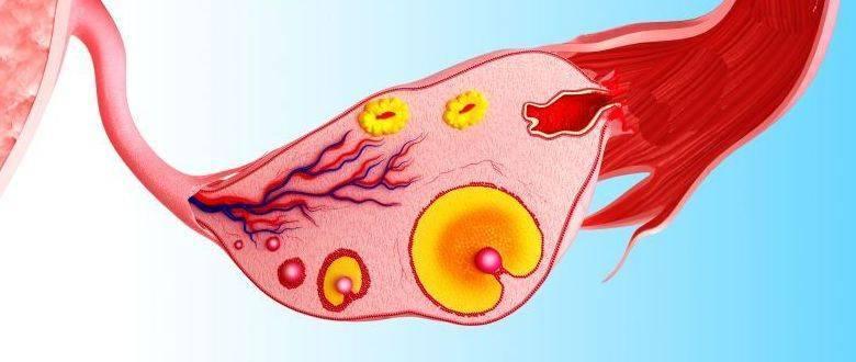Интерстициальные заболевания легких. причины, симптомы и лечение.