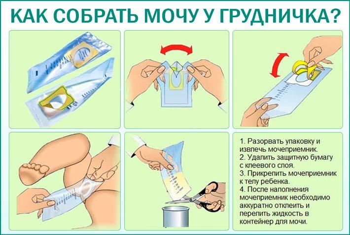 Подготовка к урологическим исследованиям (анализы перед приемом уролога)