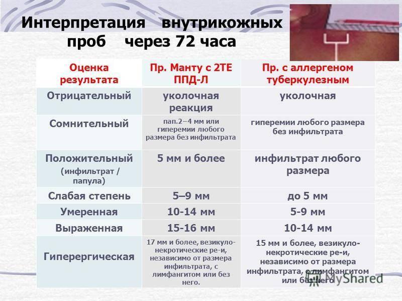 Как расшифровать результат манту у ребенка: норма размеров и реакция при туберкулезе