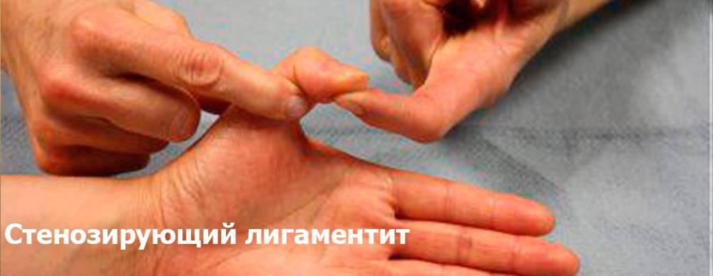 Синдром ретта у детей: общие сведения и симптомы