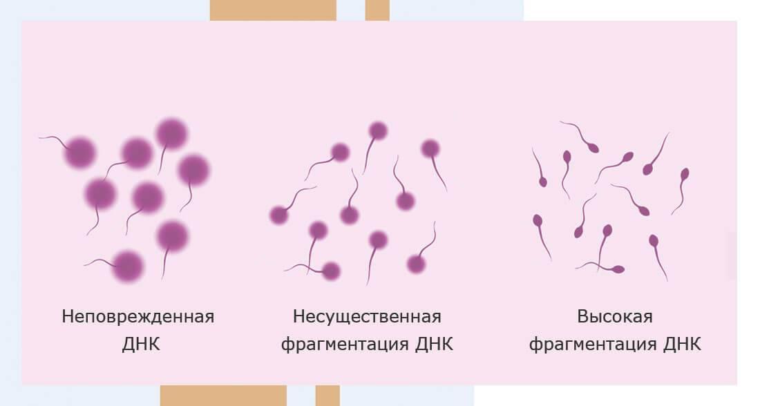 Фрагментация днк сперматозоида. целостность днк. анализ на фрагментацию днк в москве.