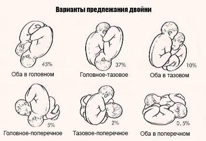 Во сколько недель малыш переворачивается головкой вниз или когда ребенок должен перевернуться головой вниз • твоя семья - информационный семейный портал